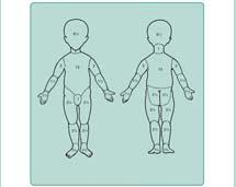 Tablica Berkowa, wykazująca odsetkowy stosunek powierzchni poszczególnych części ciała do ogólnej powierzchni ciała u dzieci.