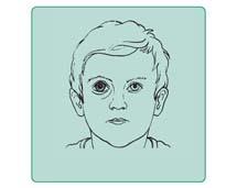 Jaskra wrodzona oka prawego. Widoczna różnica wielkości obu oczu