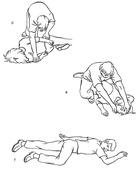 Kolejne etapy układania osoby nieprzytomnej na boku, cz.2