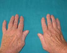 Zmiany w obrębie dłoni u pacjenta z RZS