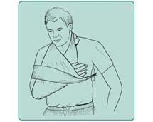 Unieruchomienie kończyny górnej przez przybandażowanie jej do tułowia (wg Nettera)