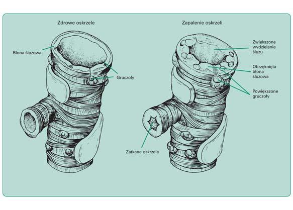 Schematyczny obraz porównawczy sytuacji anatomiczno-czynnościowej w oskrzelu zdrowym i zapalnie zmienionym