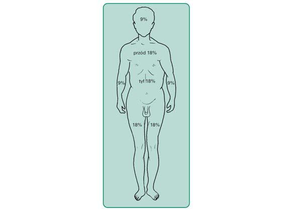 Uproszczony sposób obliczania odsetka powierzchni oparzenia, tzw. reguła 9.