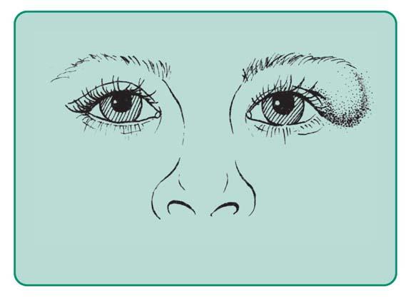 Skórzak wrodzony powieki górnej lewej