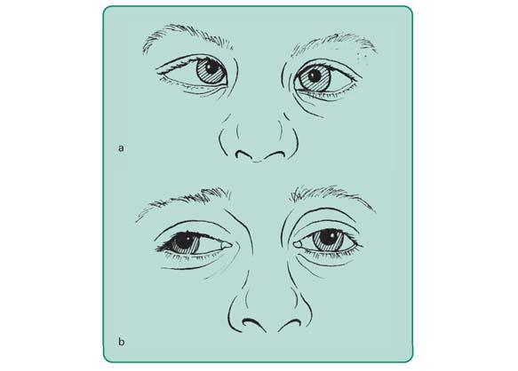 Zez oka prawego: a – zbieżny, b – rozbieżny