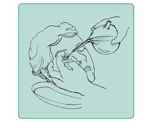 Płukanie oka za pomocą szklanego naczynia z dziobkiem, tzw. undyny