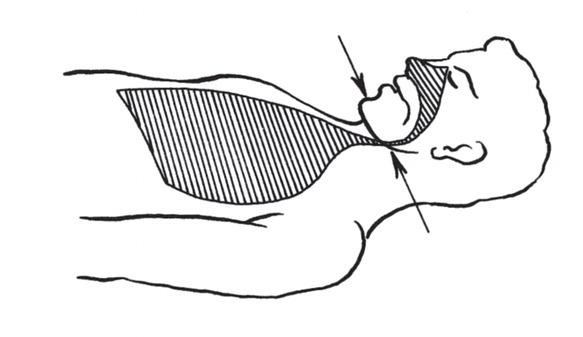 a – niedrożność spowodowana zapadnięciem się tylnej części języka i opadnięciem żuchwy