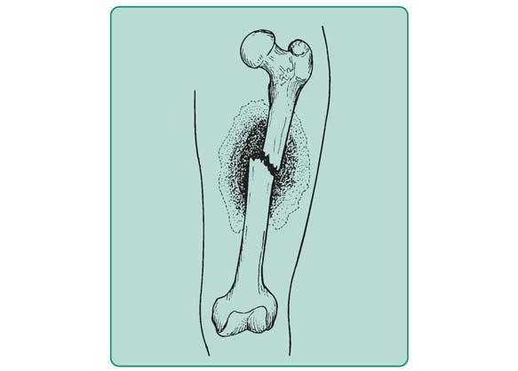 Schemat złamania zamkniętego kości udowej.