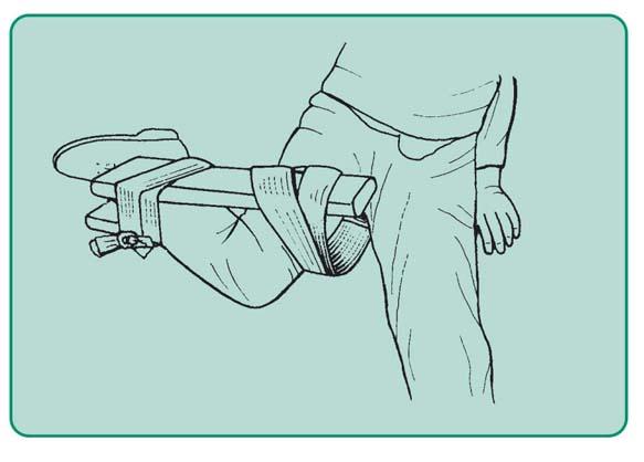 Unieruchomienie stawu kolanowego na miejscu wypadku w pozycji, w jakiej chory trzyma kończynę