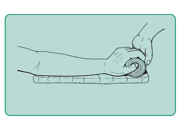 Przygotowanie do unieruchomienia nadgarstka i ręki w pozycji fizjologicznej