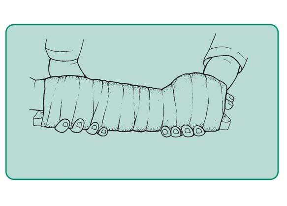 Unieruchomienie nadgarstka i ręki w pozycji fizjologicznej